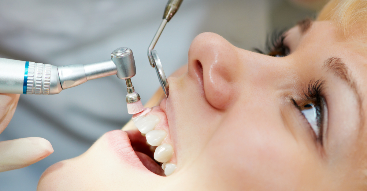 Should Dental Assistants be Cleaning Teeth?